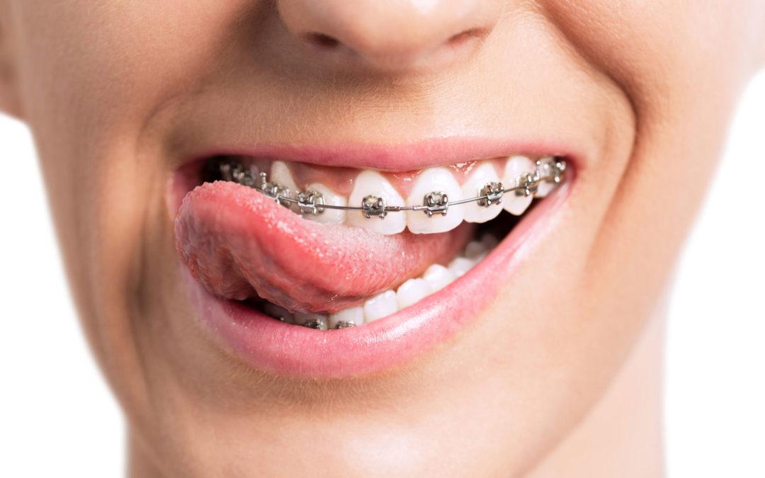 Cheap Dental Insurance for Braces
